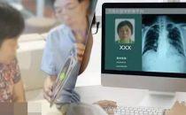 阿里健康布局医疗影像平台?推医院利益再划分