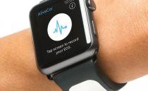 Kardia Band:为Apple Watch添加心电图检测功能