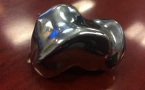 3D打印距骨植入手术帮助患者恢复75%的踝关节功能