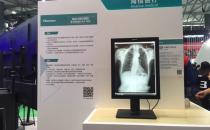从精显到微显,海信展示世界级医疗设备