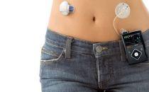 """糖尿病患者福音:全自动""""胰腺""""终于要来了"""