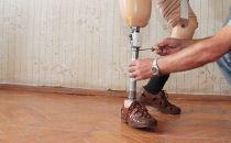 德国研究人员开发低成本3D打印假肢来帮助难民