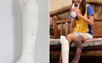日本三家公司联合开发更经济实用的3D打印假腿