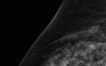 人工智能加快乳腺癌风险预测