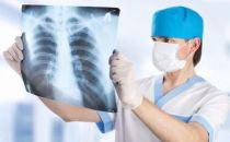 人工智能最新应用!提高肺部诊断准确性