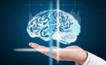 九成医疗AI都在做影像,很多熬不过今年
