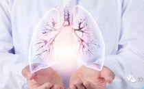 人工智能、云计算、大数据、3D打印如何改变肺癌患者的命运?