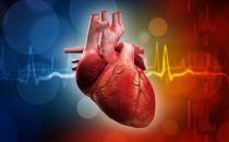 蓝帆医疗1.02亿入股同心医疗加速转型,贵得离谱的人工心脏市场大有可为